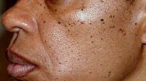 AGEING BLACK SPOTS