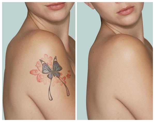 tatoo removal