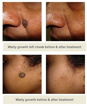 Treatment for Warty Lesions